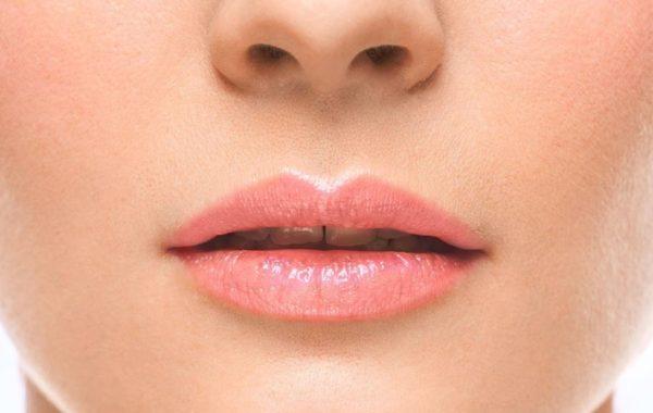 Rughe della marionetta (angoli della bocca)