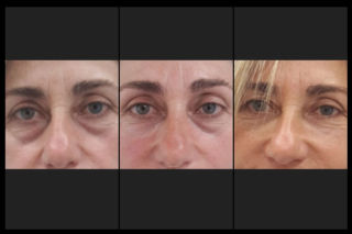 Correzione borse palpebrali. La seconda foto mostra a paragone un occhio trattato e l'altro no.