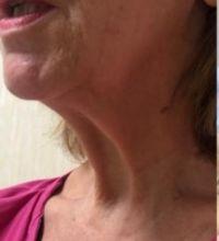 Prima e dopo - Lifting del collo preoperatorio